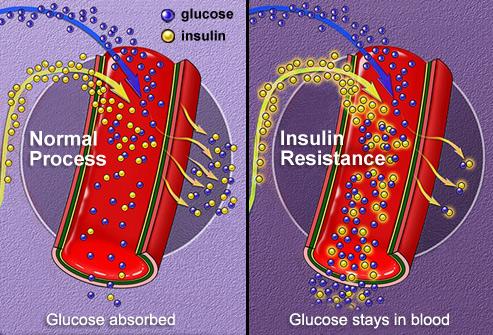phototake_rm_illustration_of_insulin_absorption
